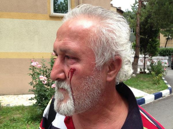 Başkan Aksoy, Gazeteci Ayhan Yıldırım'a saldırdı